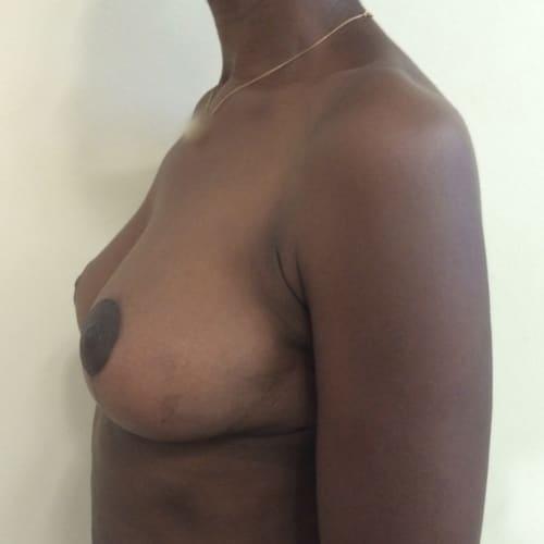 After-Ptose mammaire avant-après