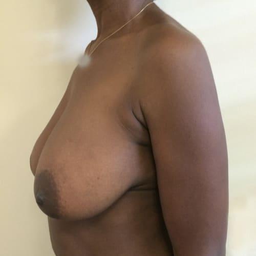 Before-Ptose mammaire avant-après