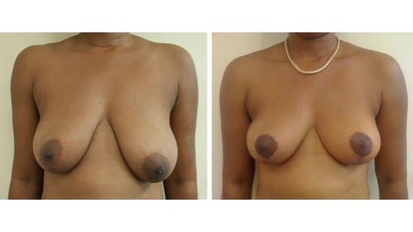 ptose mammaire avant apres 2 ptose mammaire prix ptose mammaire cicatrice ptose mammaire paris chirurgie mammaire chirurgien plasticien paris 16
