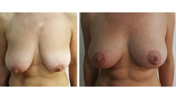 ptose mammaire avant apres 3 ptose mammaire prix ptose mammaire cicatrice ptose mammaire paris chirurgie mammaire chirurgien plasticien paris 16