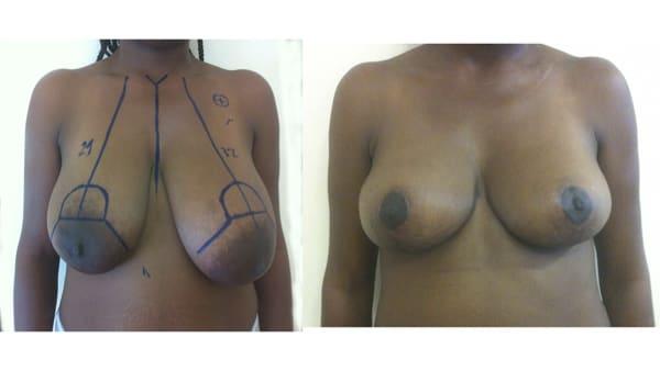ptose mammaire avant apres 4 ptose mammaire prix ptose mammaire cicatrice ptose mammaire paris chirurgie mammaire chirurgien plasticien paris 16