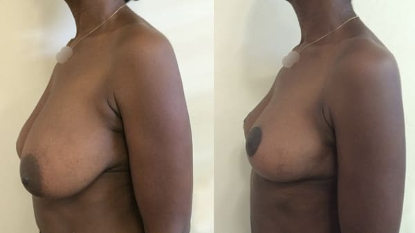 ptose mammaire avant apres 5 ptose mammaire prix ptose mammaire cicatrice ptose mammaire paris chirurgie mammaire chirurgien plasticien paris 16