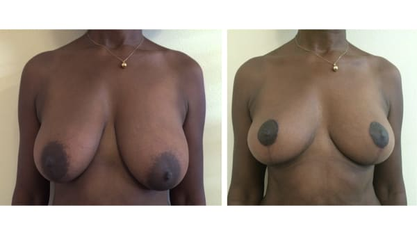 ptose mammaire avant apres 6 ptose mammaire prix ptose mammaire cicatrice ptose mammaire paris chirurgie mammaire chirurgien plasticien paris 16