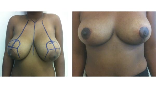 ptose mammaire avant apres 7 ptose mammaire prix ptose mammaire cicatrice ptose mammaire paris chirurgie mammaire chirurgien plasticien paris 16