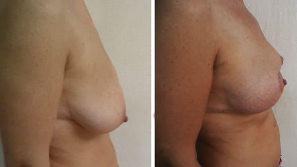 ptose mammaire avant apres 8 ptose mammaire prix ptose mammaire cicatrice ptose mammaire paris chirurgie mammaire chirurgien plasticien paris 16