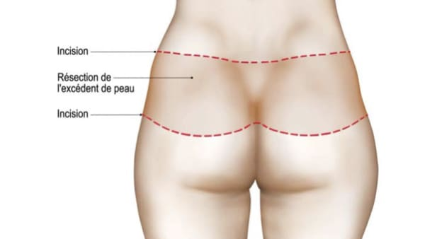 schema 2 bodylift inferieur bodylift avant apres bodylift paris bodylift prix chirurgie esthetique corps intervention esthetique chirurgien plasticien paris 16