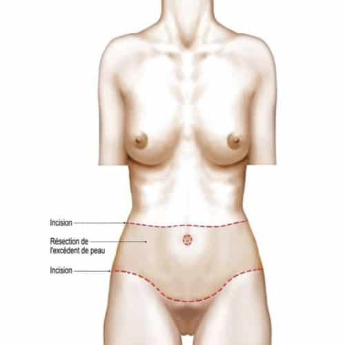 schema bodylift inferieur bodylift avant apres bodylift paris bodylift prix chirurgie esthetique corps intervention esthetique chirurgien plasticien paris 16