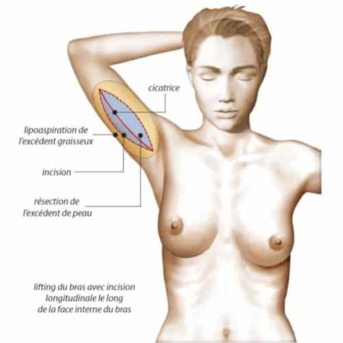 schema brachioplastie prix brachioplastie temoignages lifting des bras paris chirurgie esthetique corps intervention esthetique chirurgien plasticien paris 16