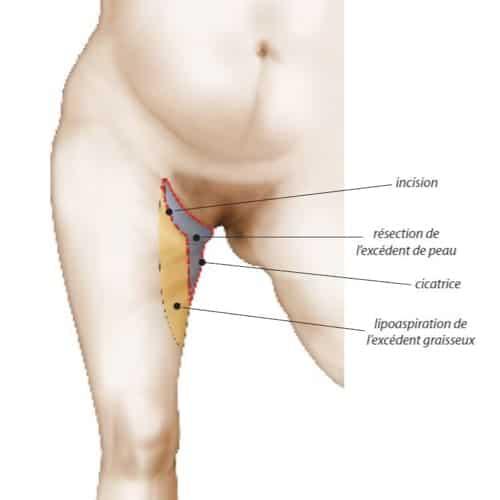 schema cruroplastie prix lifting cuisses avant apres lifting cuisses cicatrice chirurgie esthetique corps intervention esthetique chirurgien plasticien paris 16