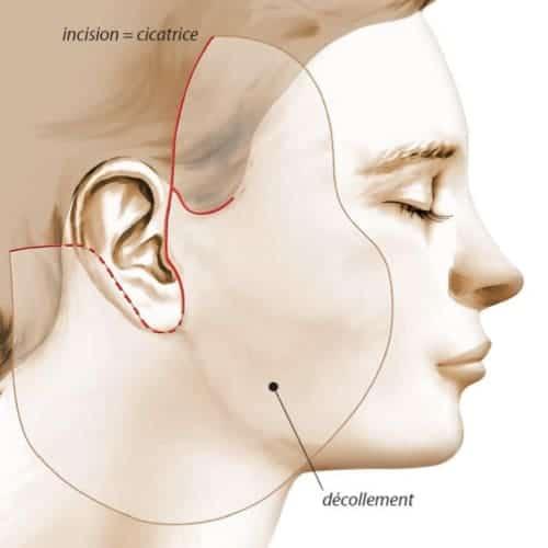 schema lifting cervico facial lifting du visage lifting visage avant apres lifting visage paris chirurgie esthetique visage chirurgien plasticien paris 16
