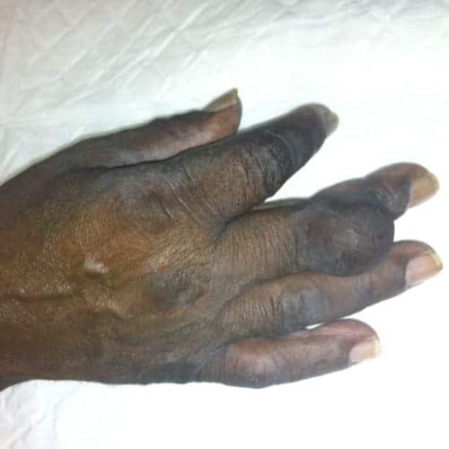 tumeur cellule geante tumeur benigne de la peau tumeur benigne peau photo tumeur de la peau symptomes chirurgie dermatologique chirurgien plasticien paris 16